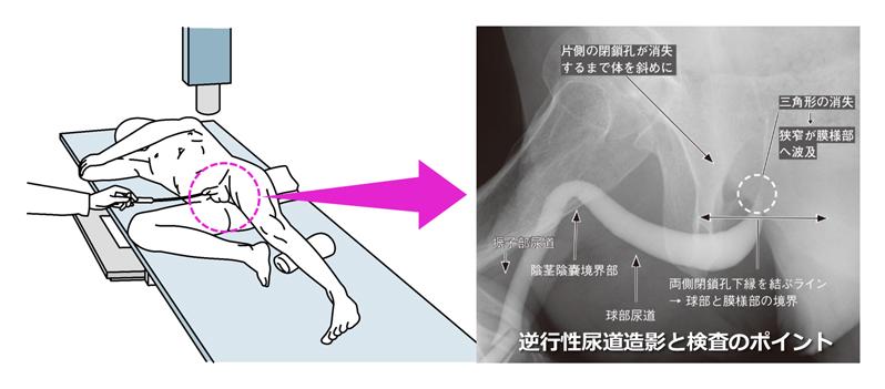 尿道狭窄症の検査は?|堀口明男 Official Site