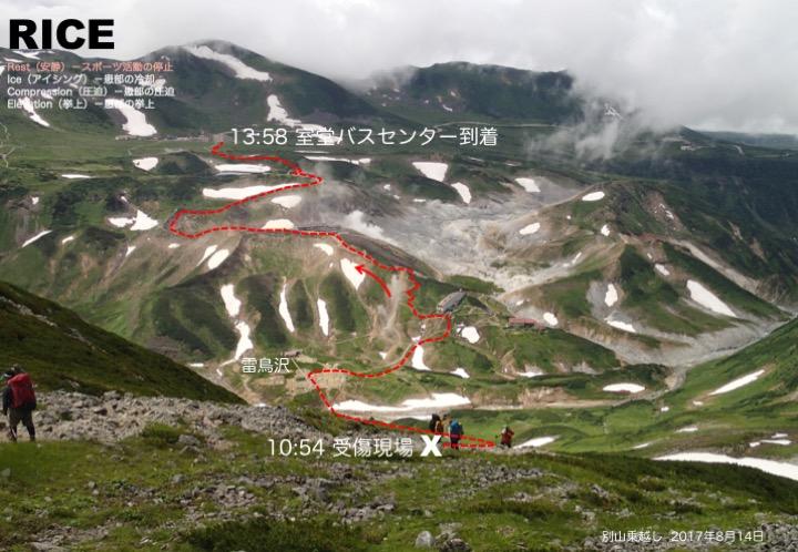 X: 別山乗越しから雷鳥沢へ少し下り始めた受傷地点。午前11頃に、登ってきた登山者に道を譲ろうとして左足を浮き石に乗せたのだろう。足関節が内反した瞬間に激痛が