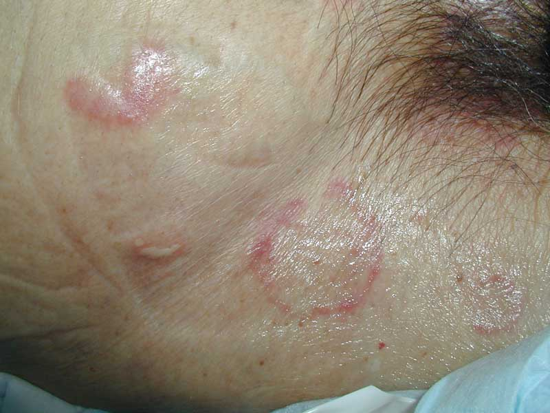 Low-Tech telemedicine: Dermato...