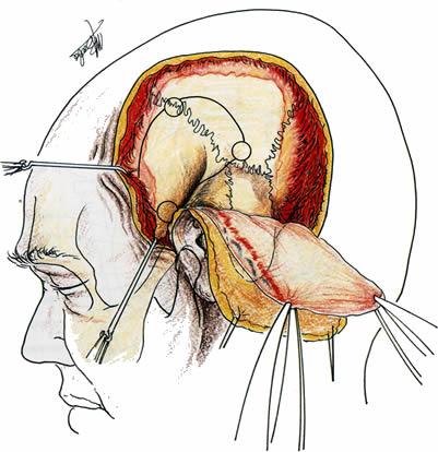 Neuroinfo Japan:開頭手術