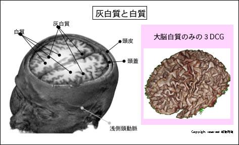 Neuroinfo Japan:脳とそれをさ...