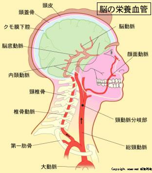 Neuroinfo Japan:脳の動脈